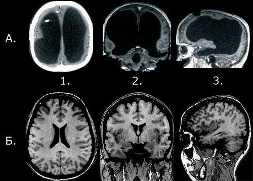 Сравнение мозга клерка из Марселя (в верху) с мозгом нормального человека (внизу)